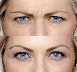 botox-beforeafter