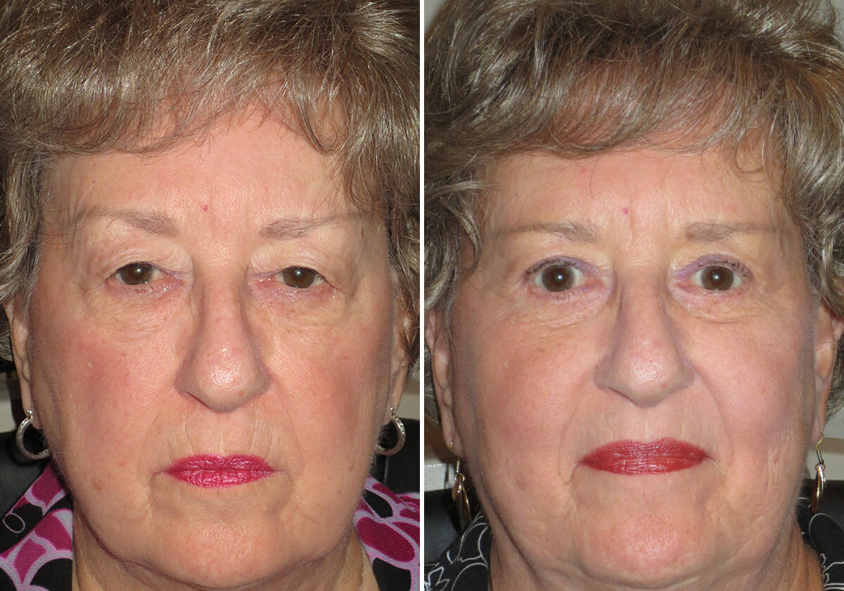 female-blepharoplasty-patient-1