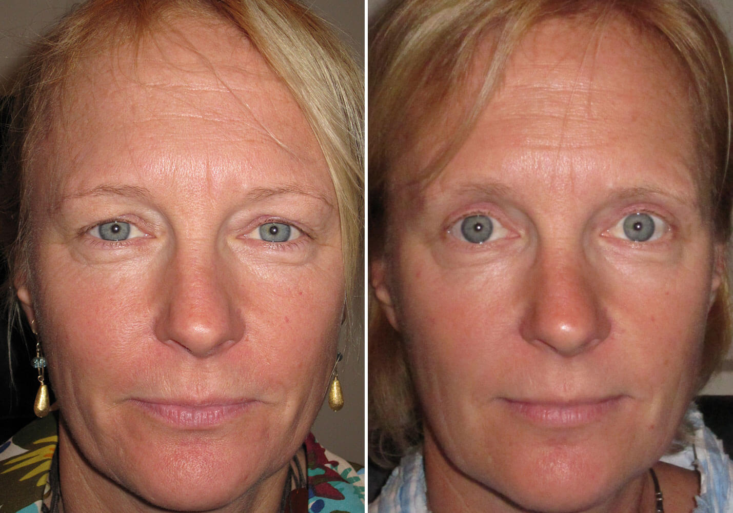 female-blepharoplasty-patient-10