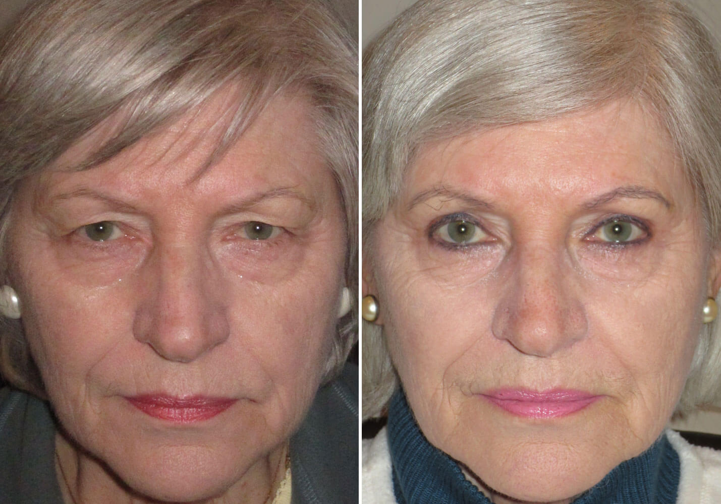 female-blepharoplasty-patient-11