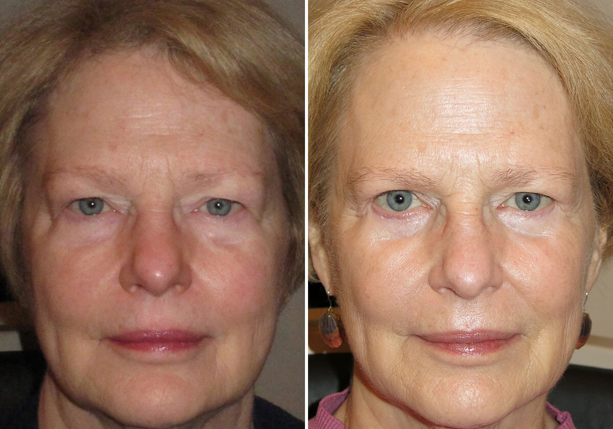 female-blepharoplasty-patient-13