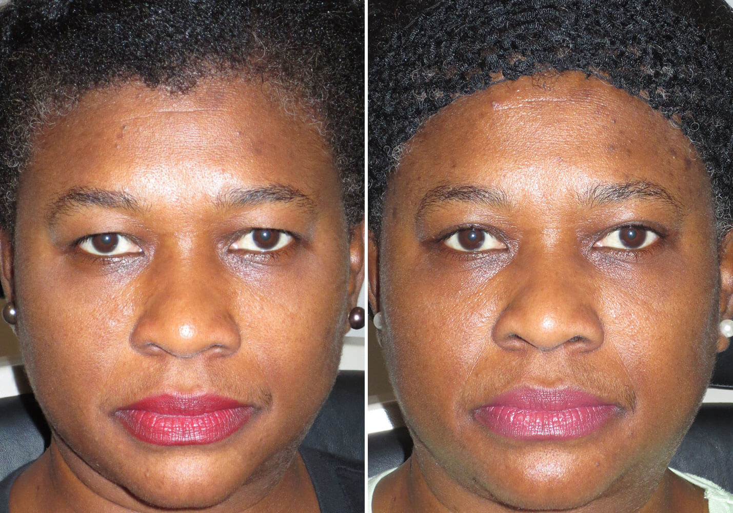 female-blepharoplasty-patient-14