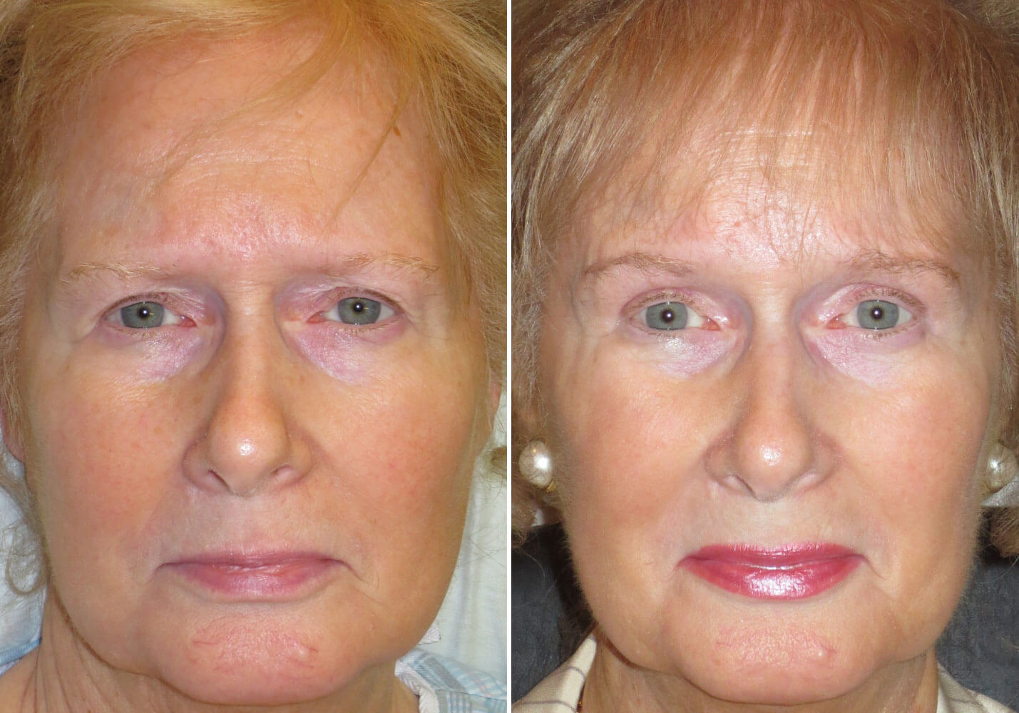 female-blepharoplasty-patient-15