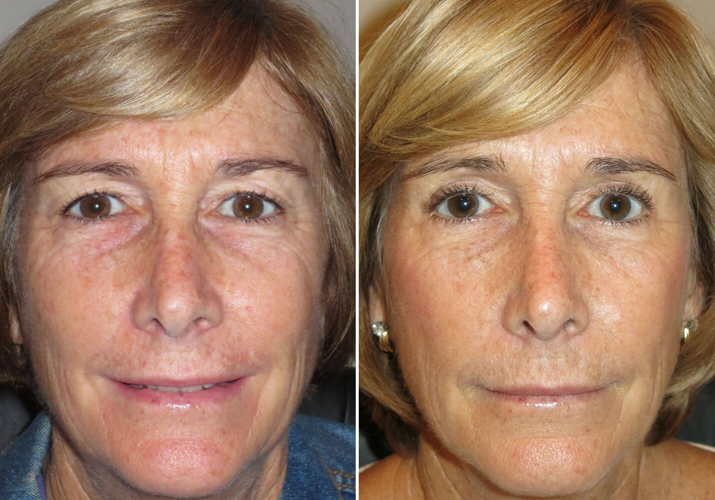 female-blepharoplasty-patient-16