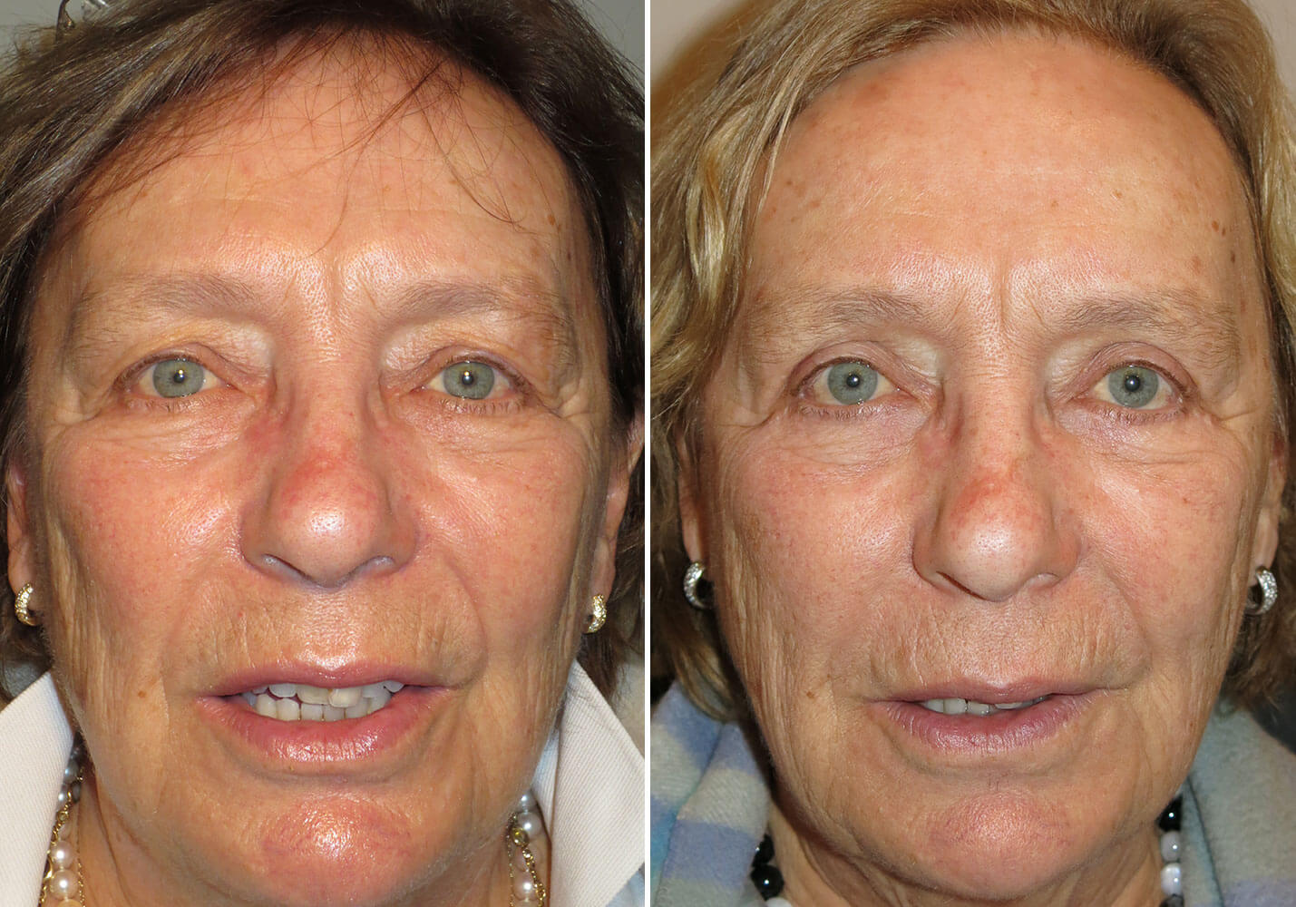 female-blepharoplasty-patient-18