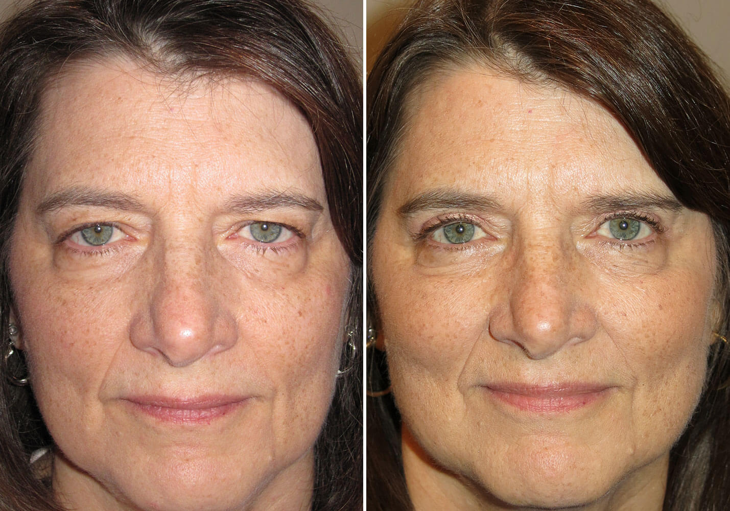 female-blepharoplasty-patient-19