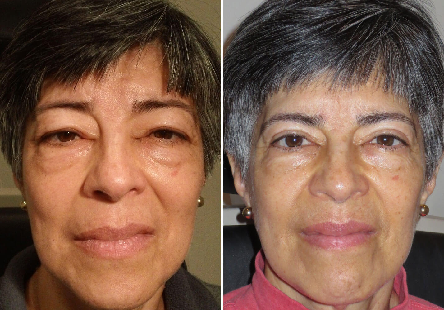 female-blepharoplasty-patient-3