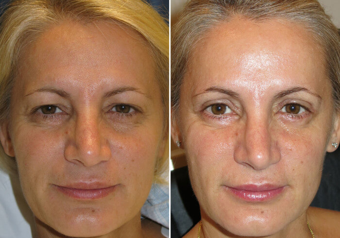 female-blepharoplasty-patient-4