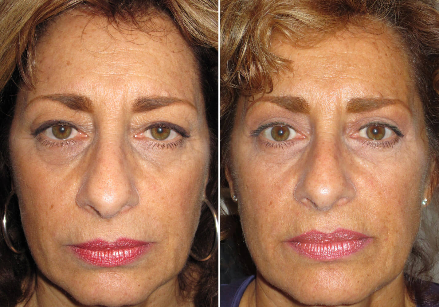 female-blepharoplasty-patient-7