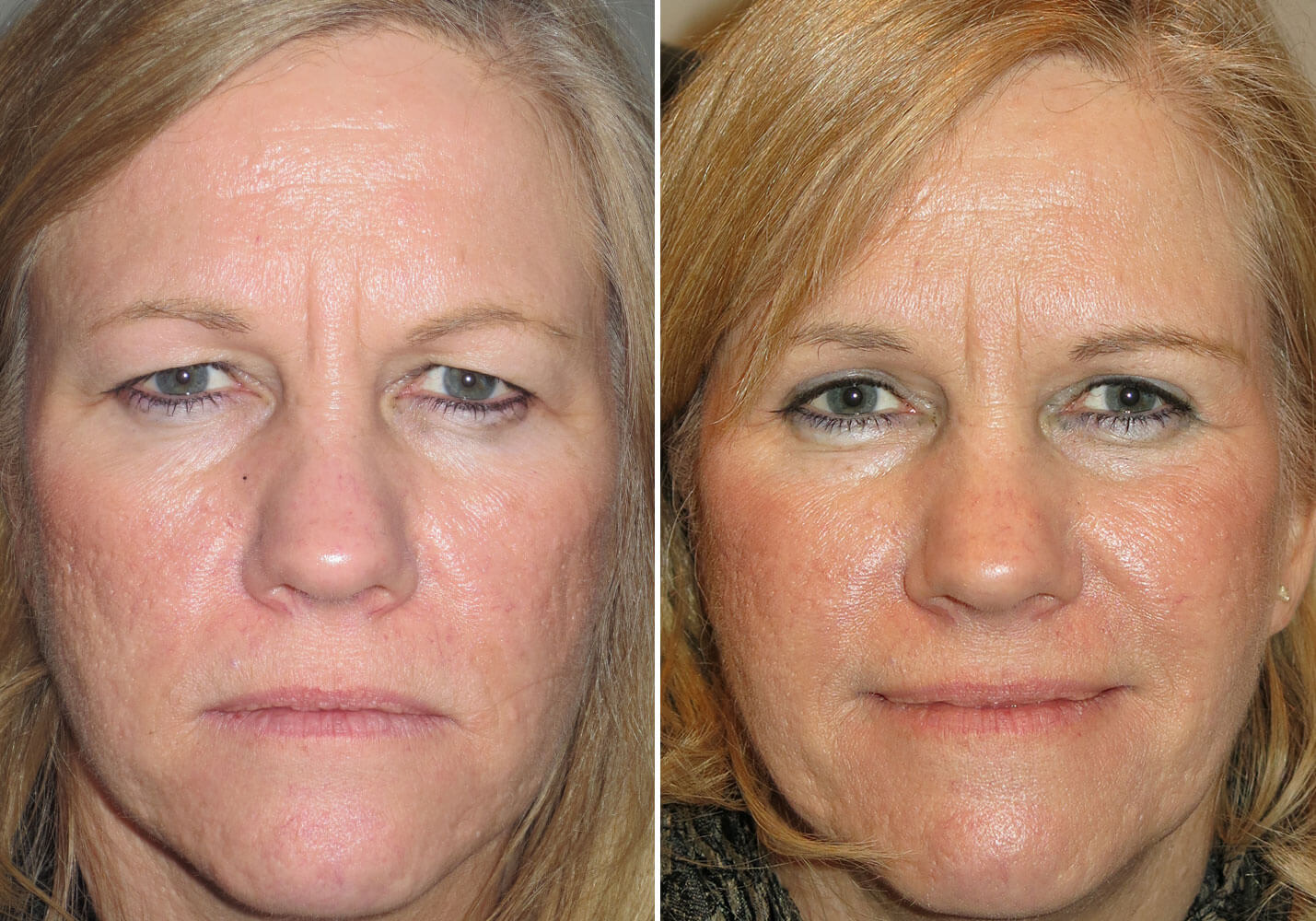 female-blepharoplasty-patient-8