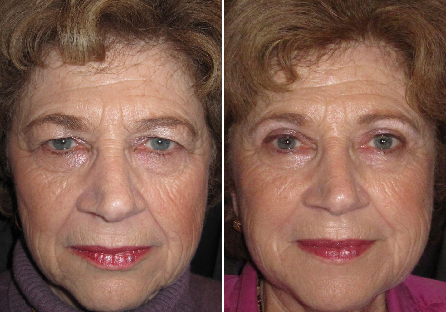 female-blepharoplasty-patient-9