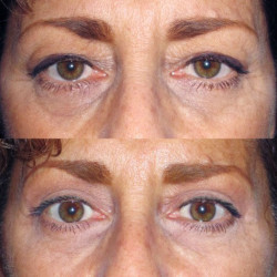 gallery-blepharoplasty-mainthumb