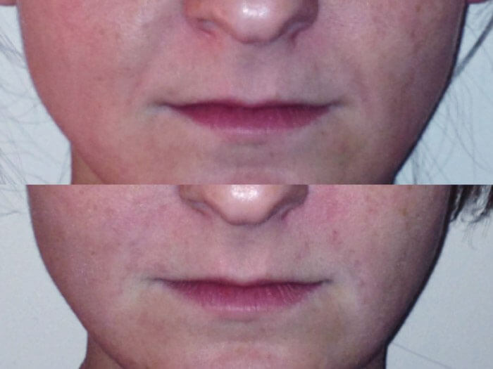gallery-juvederm-mainthumb