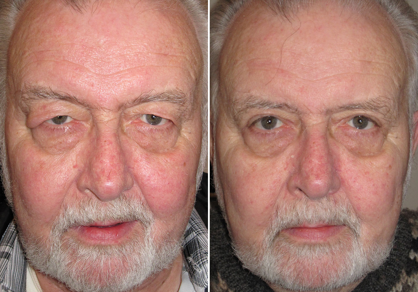 male-blepharoplasty-patient-1