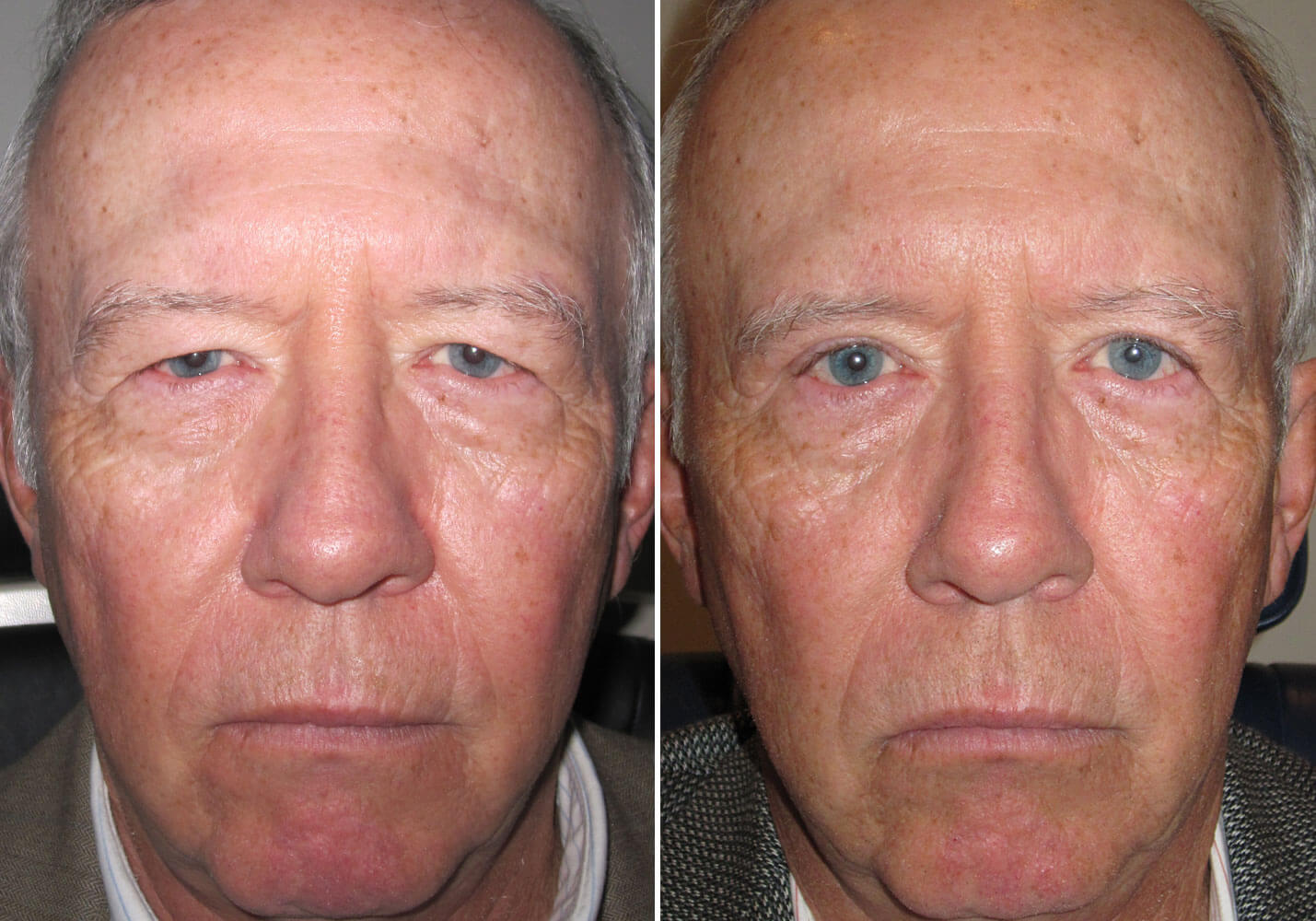 male-blepharoplasty-patient-2