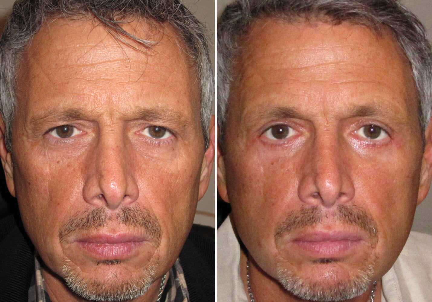 male-blepharoplasty-patient-3