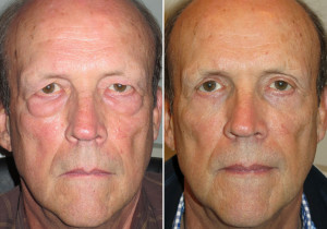 Is Blepharoplasty Right for You?