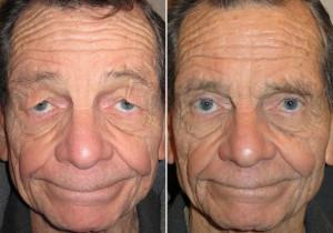 Alternatives to Eyelid Surgery for Droopy Eyelids