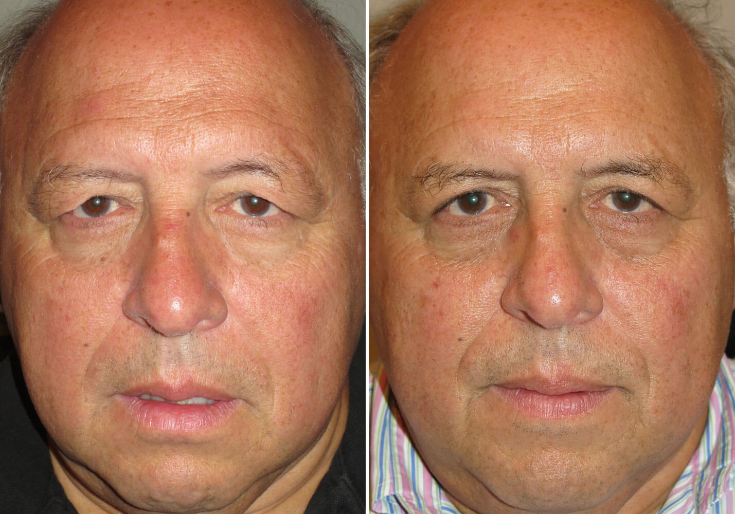 male-blepharoplasty-patient-6