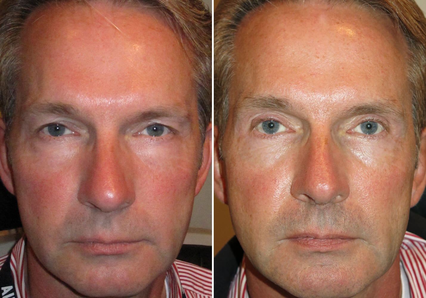 male-blepharoplasty-patient-7
