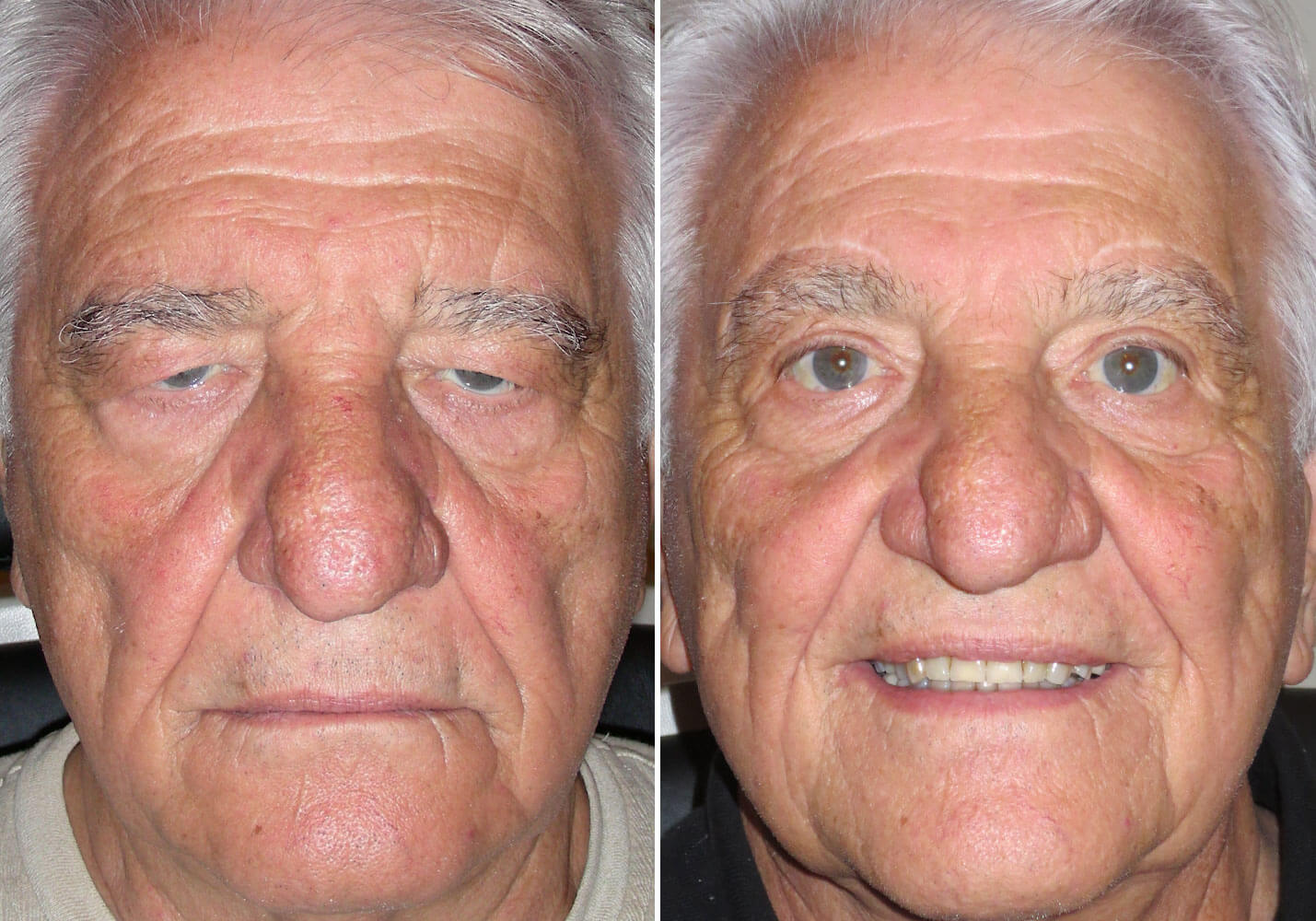 male-blepharoplasty-patient-8
