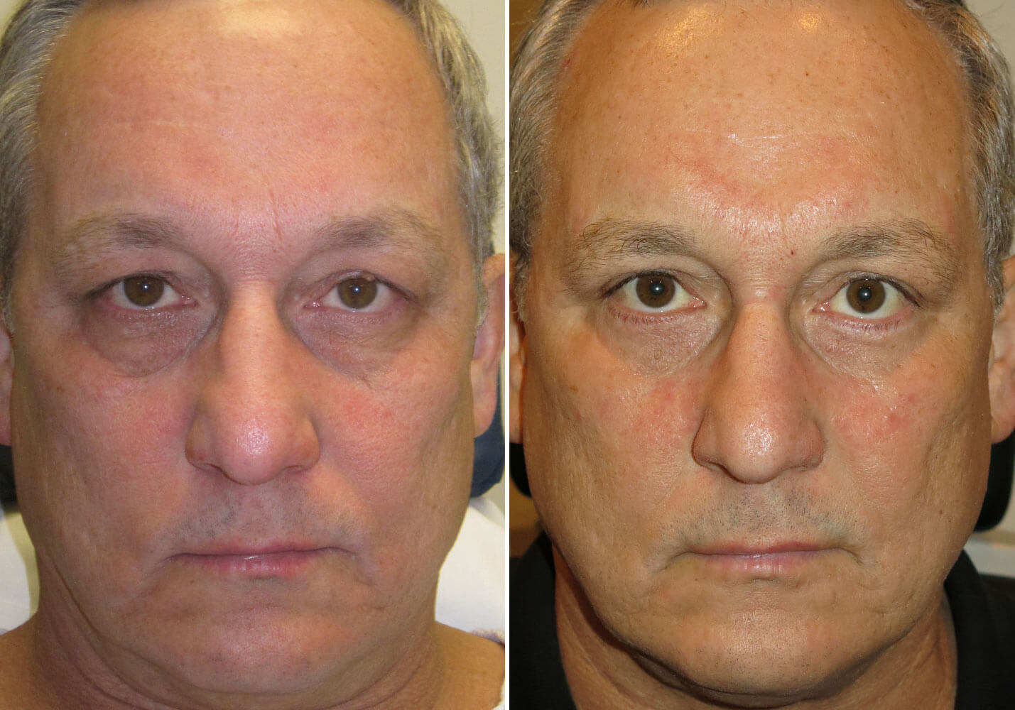 male-blepharoplasty-patient-9