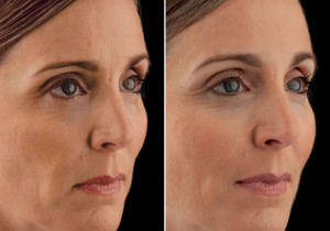 3 Amazing Benefits Of Eyelid Surgery