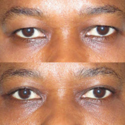 ptosis-before-after-switch