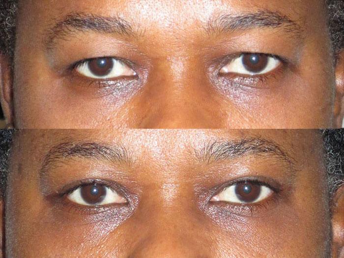 Cosmetic Amp Reconstructive Eyelid Surgery Dr Landmann