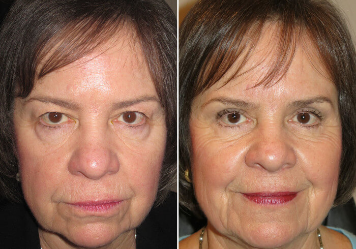 female-blepharoplasty-patient-5