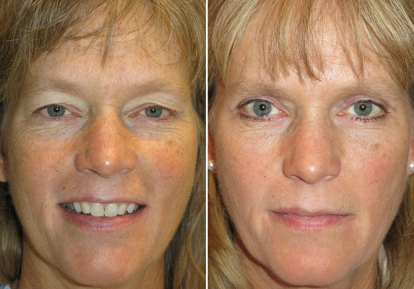 Cosmetic Eyelid Amp Reconstructive Surgery In New Jersey